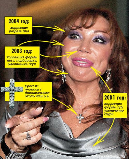 Последние годы певица слишком увлеклась пластическими операциями: как говорят врачи, у её проблемы есть медицинское название - дисморфомания
