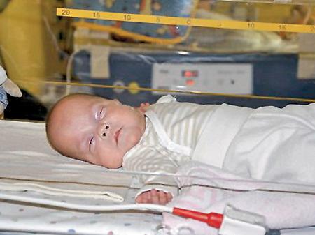 Фрида выжила, появившись на свет на 21-й неделе беременности