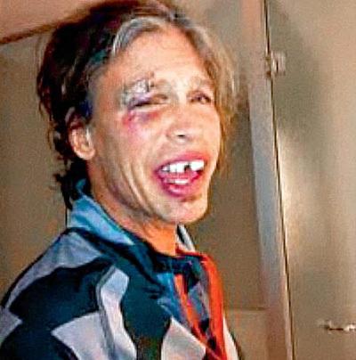 Стивен ТАЙЛЕР уверяет, что упал абсолютно трезвым (фото Reuters)
