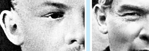 Форма ушной раковины как Владимира УЛЬЯНОВА (1890 г.), так и Николая ЛЕНИНА (1917) отличается…