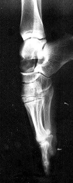 Для изменения подъёма балерины гнут ноги, засунув их под батарею или шкаф