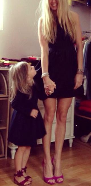 Вера БРЕЖНЕВА шокировала поклонников анорексично худыми ногами