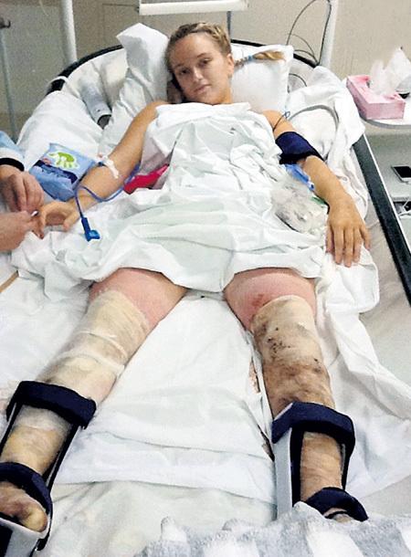 20-летней девушке пришлось пережить множество сложных операций и заново учиться ходить. Фото из личного архива Екатерины КОМЛЕВОЙ
