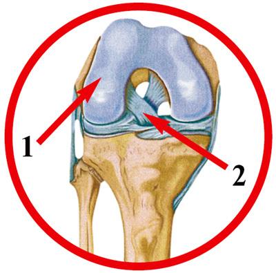 1. Титановый протез колена