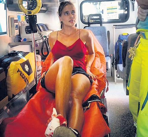 Певице Наталье ИОНОВОЙ (ГлюкоZе) страховка пригодилась в Италии, где она повредила ногу, упав с велосипеда