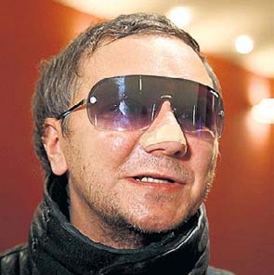 Миша ГРЕБЕНЩИКОВ объяснил, что пластырь на носу помогает ему худеть