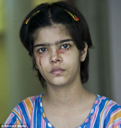 Твинкл Диведи - девочка, плачущая кровью. Фото: Daily Mail