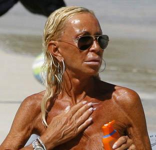 Донателла Версаче - большая любительница солнечных ванн. Фото: celebrity-gossip.net
