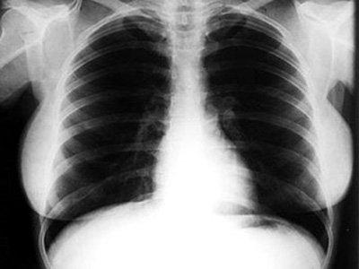 Рентгеновский снимок Монро выставят на аукционе с начальной ценой в 800 долларов. Фото Daily Telegraph