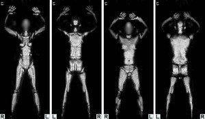 Звёздам есть чего опасаться - на распечатках отсканнированных изображений отчетливо видны даже гениталии
