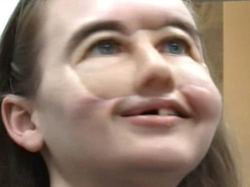 Крисси счастлива: теперь она может появляться на людях без маски.