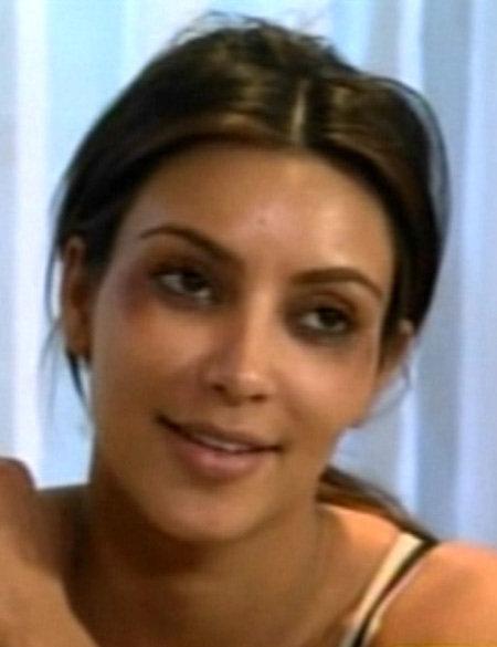 После того, как ей вкололи ботокс, лицо Ким украсилось безобразными синяками
